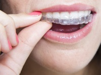 Orthodontic Treatment Advances: Braces Then and Now