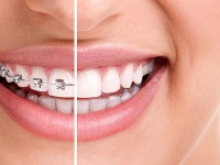Five Options to Get Affordable Braces for Adults